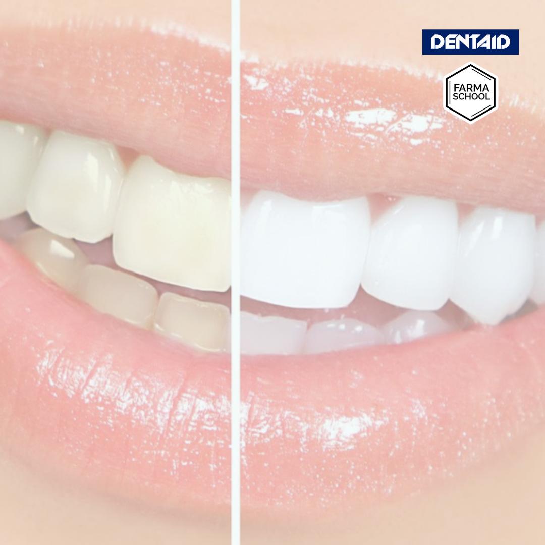 ¿Cómo recuperar el blanco natural de los dientes?